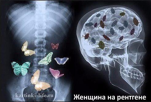 Женщина на рентгене